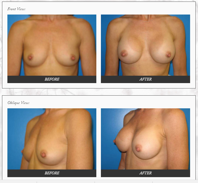 Breast-Augmentation-plastic-SURGERY-before-and-after-photos-Dr.-Champion-Orange-County-Newport-Beach Breast Augmentation Newport Beach Newport Beach Female Plastic Surgeon | Orange County