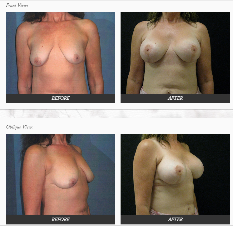 Breast-Augmentation-with-lift-plastic-SURGERY-before-and-after-photos-Dr.-Champion-Orange-County-Newport-Beach Breast Lift Newport Beach Newport Beach Female Plastic Surgeon | Orange County