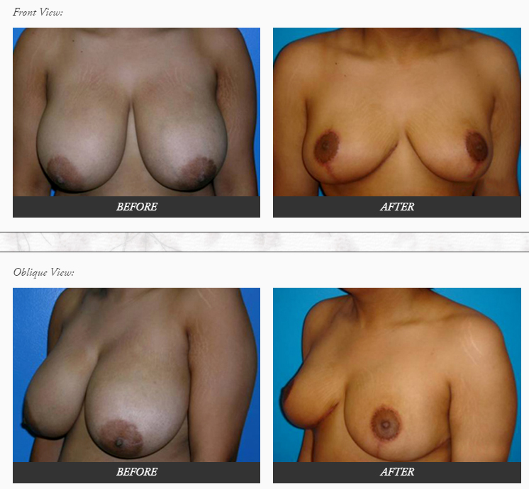 Breast-Reduction-plastic-SURGERY-before-and-after-photos-Dr.-Champion-Orange-County-Newport-Beach Breast Reduction Newport Beach Newport Beach Female Plastic Surgeon | Orange County