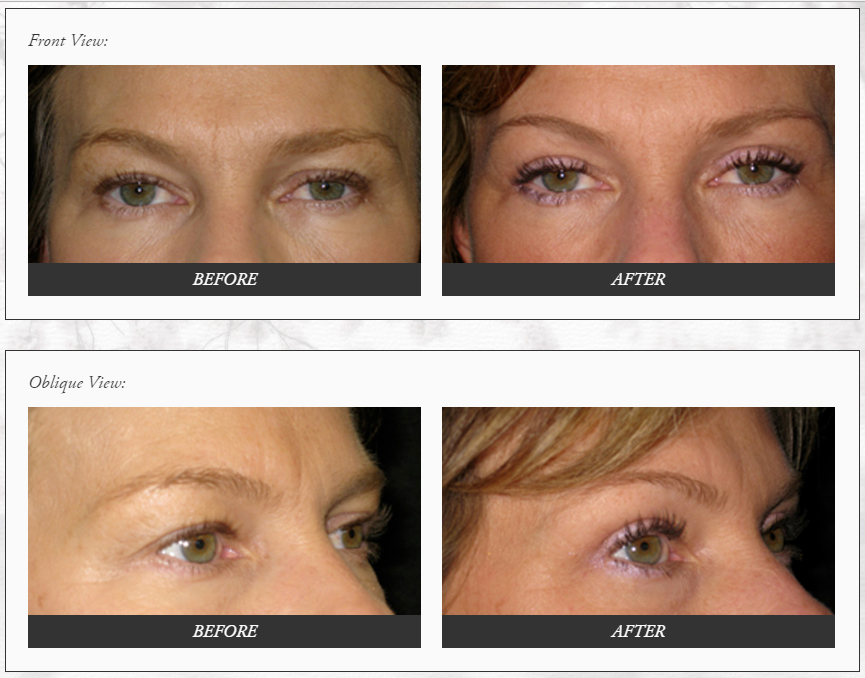 EYELID-SURGERY-before-and-after-photos-Dr.-Champion-Orange-County-Newport-Beach Eyelid Surgery Newport Beach Female Plastic Surgeon | Orange County