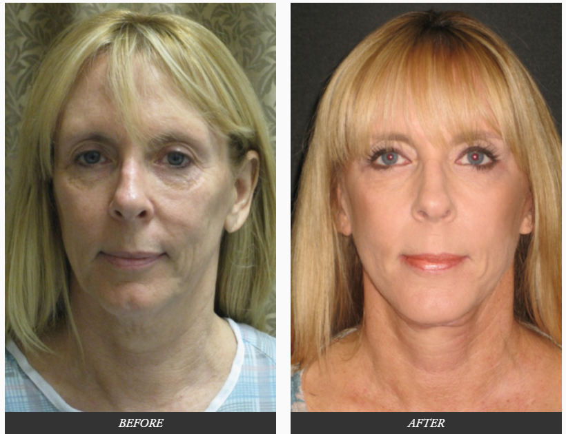 Facelift-plastic-SURGERY-before-and-after-photos-Dr.-Champion-Orange-County-Newport-Beach Facelift Surgery Newport Beach Female Plastic Surgeon | Orange County