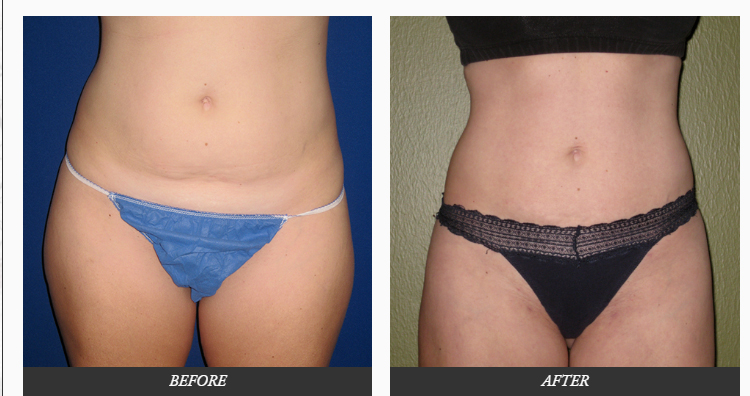 Liposuction-plastic-SURGERY-before-and-after-photos-Dr.-Champion-Orange-County-Newport-Beach Liposuction Surgery Newport Beach Female Plastic Surgeon | Orange County