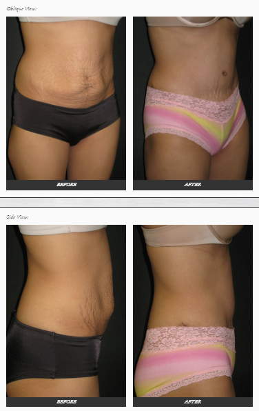 Tummy-tuck-plastic-SURGERY-before-and-after-photos-Dr.-Champion-Orange-County-Newport-Beach Tummy Tuck in Newport Beach Newport Beach Female Plastic Surgeon | Orange County