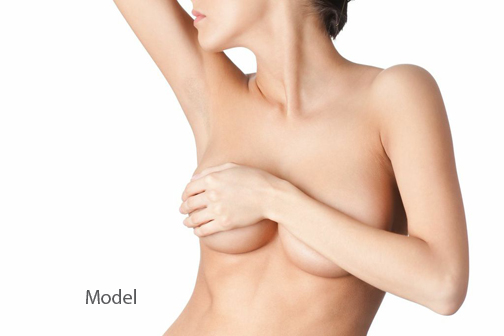 body-13 Choosing Your Breast Augmentation Surgeon Newport Beach Female Plastic Surgeon | Orange County