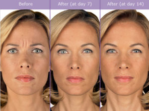 botox-before-and-after-picture-300x224 Non-Invasive Newport Beach Female Plastic Surgeon | Orange County