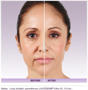 juvederm-4-295x300 Non-Invasive Newport Beach Female Plastic Surgeon | Orange County